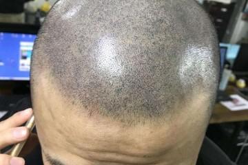 西宁纹发疗程进行时会感到痛楚吗?