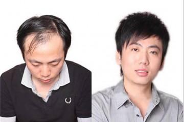 长沙纹发真能帮助脱发患者吗